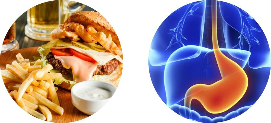 Valvula Ileocecal causas-HHCC-Hcl
